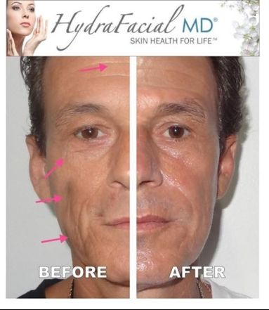 Hydrafacial Before And After Realresults Hydrafacial Facial Skincare Beauty Face Skin S Hydra Facial Professional Skin Care Products Facial Treatment