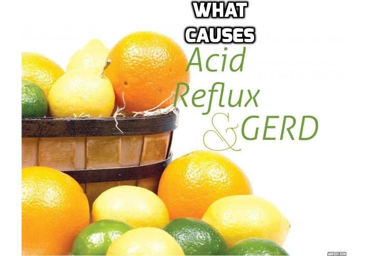As Gastro causes of acid reflux treatingheartburn causes of acid reflux