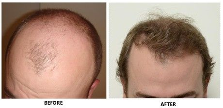 The Best Type Of Hair Transplant Is One That Is Tailored
