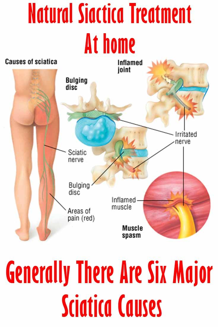 Article And Treatment Tips Generally There Are Six Major Sciatica Causes Sciatica