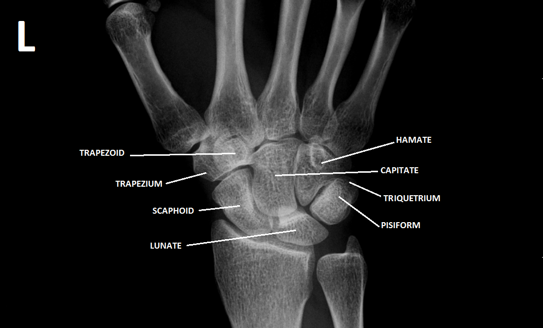 ECR 2015 / C-2327 / Commonly missed fractures in the Emergency Department<sub><sup></sup></sub> - EPOS™