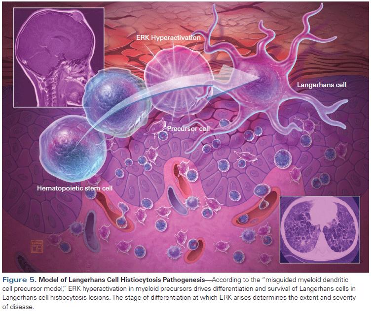Pulmonary Langerhans Cell Histiocytosis - The Clinical Advisor