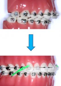 How Braces Fix Overbite Braces Rubber Bands Fix Overbite Dental Braces
