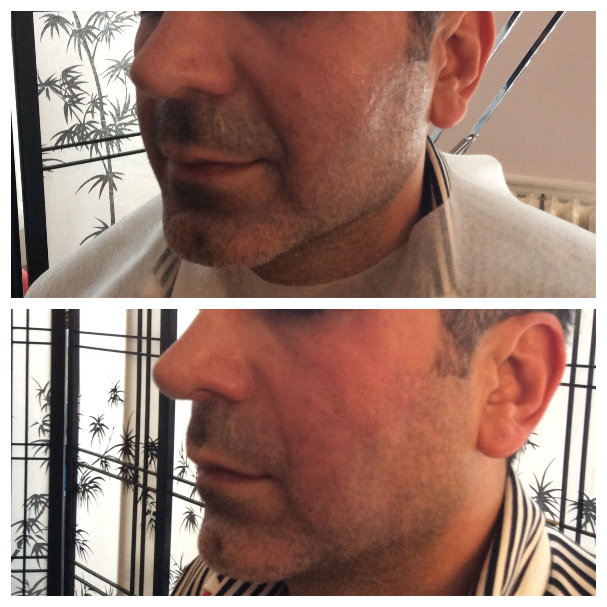 Before & immediately after PDO Threads to Nasolabial folds