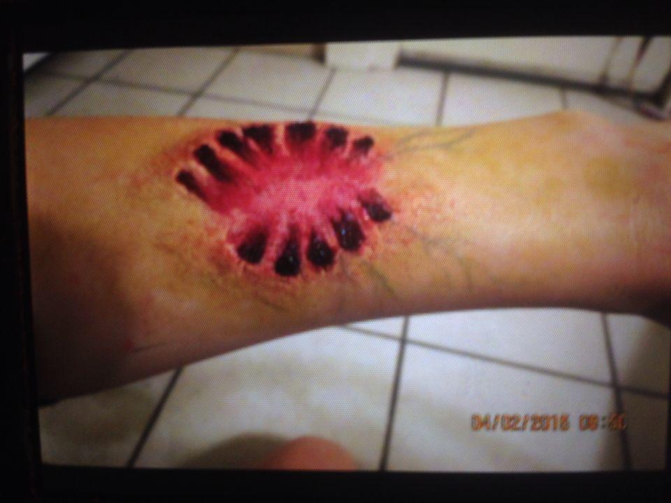 Infected zombie bite