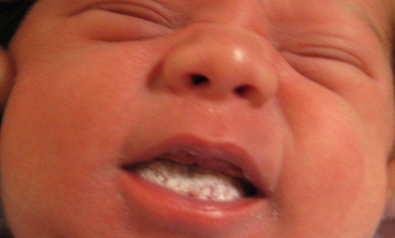 علاج فطريات الفم عند الاطفال والرضع في المنزل موقع عيادة اﻷطفال In 2020 Baby Health Pediatric Medicine Kids Health