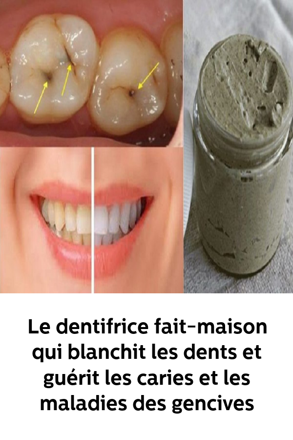 Pin On Beaute Soins