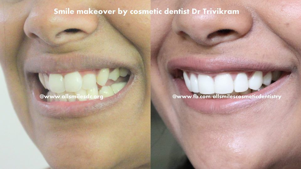 Cosmetic dentistry involves treatment procedure such as