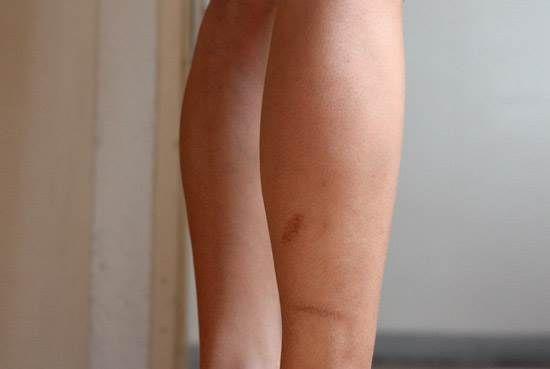 0afb83d2eee3a5598a1e007888c6403d - How To Get Rid Of Scabs On Legs Fast