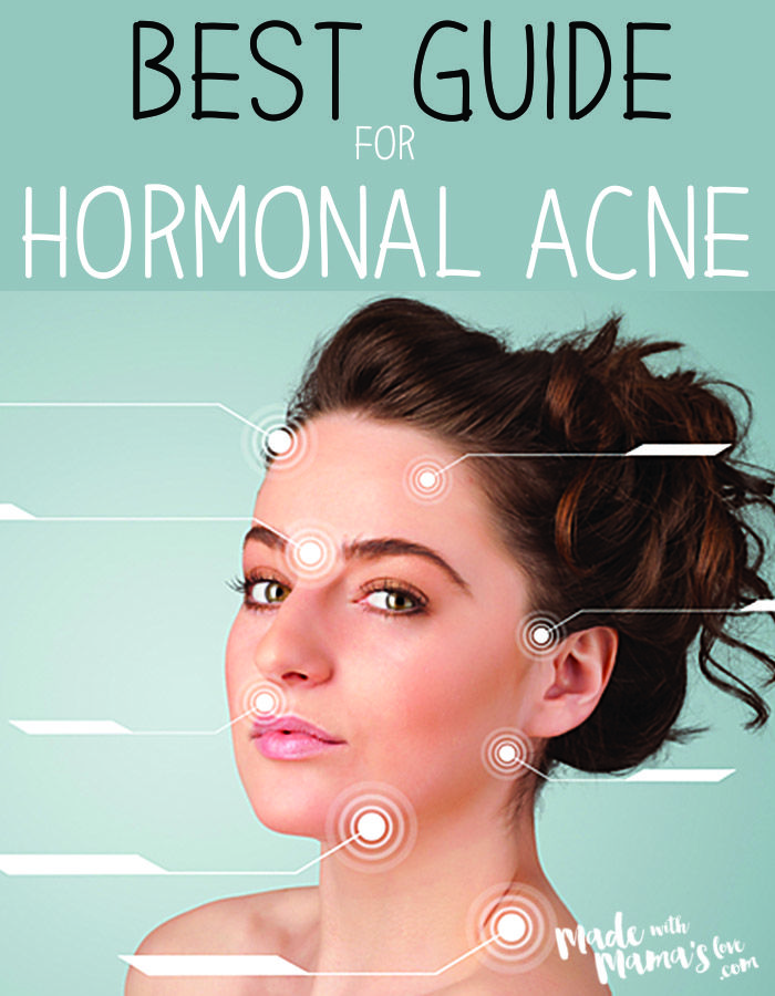 Hormonal Acne Diagram Electric Sub Meter Wiring The Best Guide For Treating Knowledge Is Power Come Learn And Understand What Happening In Your Body To Help Defeat Breakouts