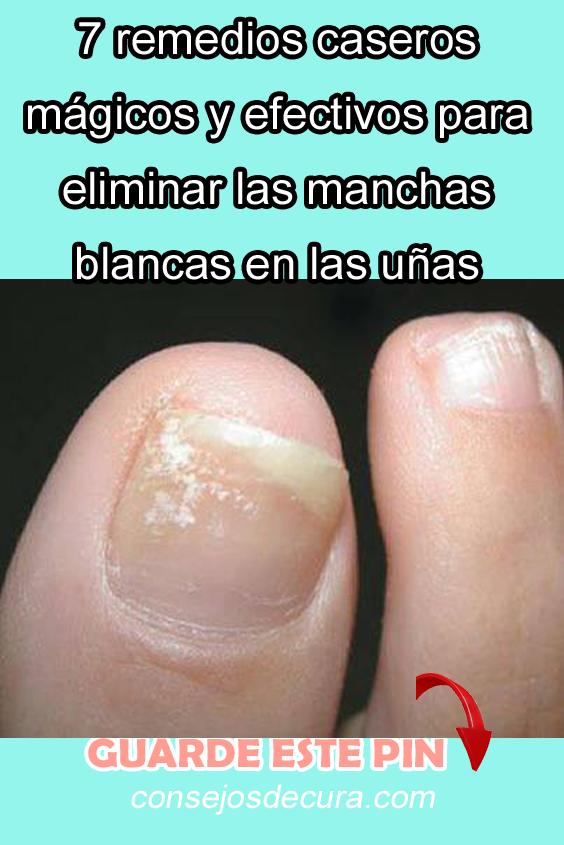 manchas blancas uñas pies hongos