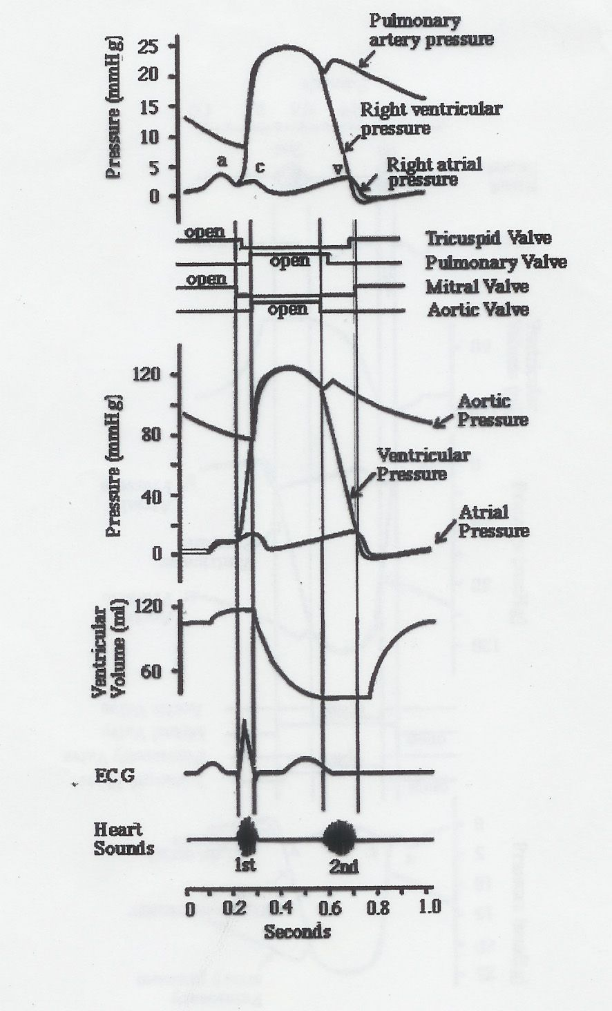 Wiggers Diagram Explained | LV Systolic Function | Pinterest