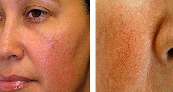 broken capillaries natural treatment