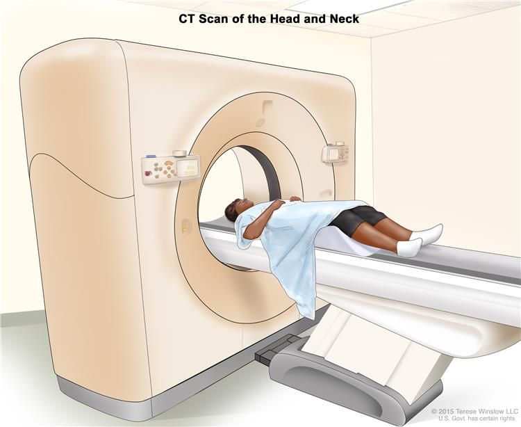 0b057f373b4d3bbaadce475eb6811d74 - How Long Does It Take To Get A Ct Scan