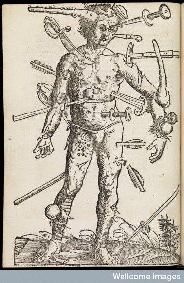1530 From: Feldtbuch der Wundartzney, newlich getruckt und gebessert / By: Hans von Gersdorff   Wound Man