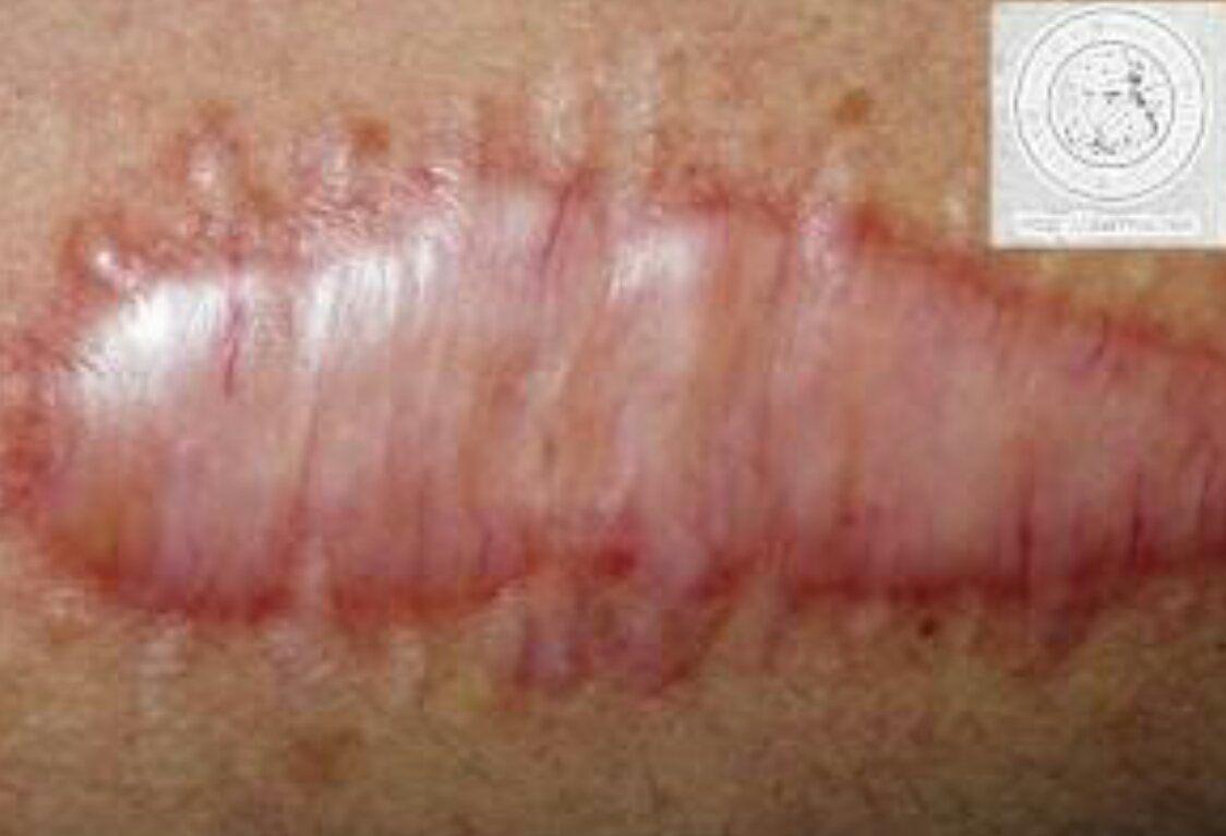 Natural Treatment Scar Tissue