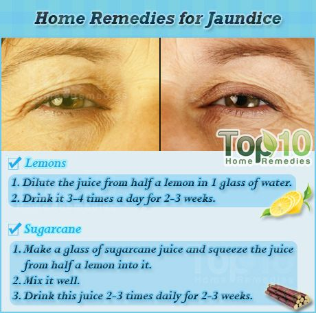 How To Get Rid Of Jaundice In Adults Naturally