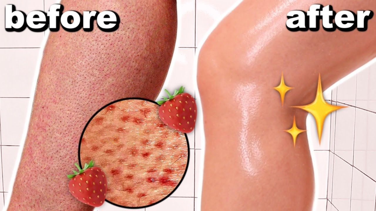 0b14ffb53b37e52e3461027e3bca7385 - How To Get Rid Of Strawberry Spots On Legs