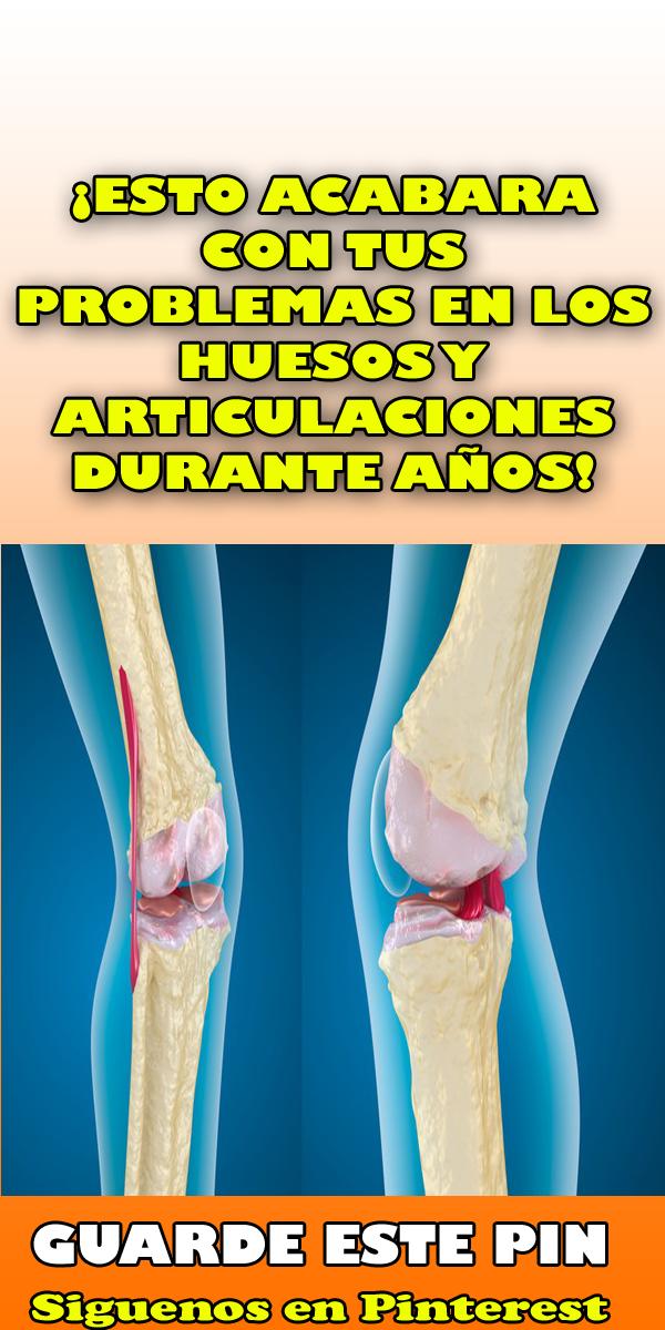 Esto Acabara Con Tus Problemas En Los Huesos Y Articulaciones Durante Años Remedios Al Minuto Consejos Para La Salud Remedios Dolor En Los Huesos