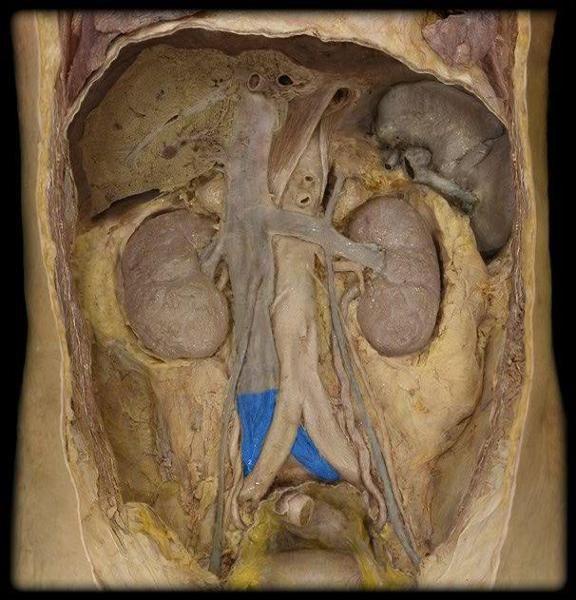 Iliac Veins | ANATOMIA | Pinterest | Anatomía