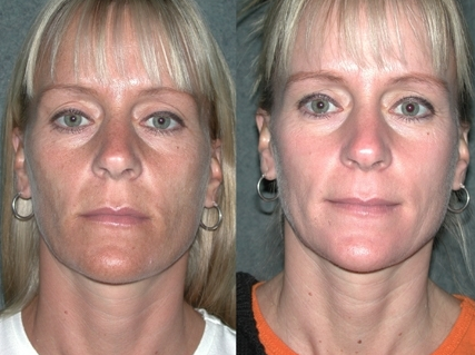 The Cutera LimeLight delivers a non-invasive light treatment that can be customized to improve skin tone and surface imperfections that are associated with aging and photodamage. The LimeLight evens out red or mottled complexions and fades or eliminates brown age spots and sun spots, as well as tiny vessels.