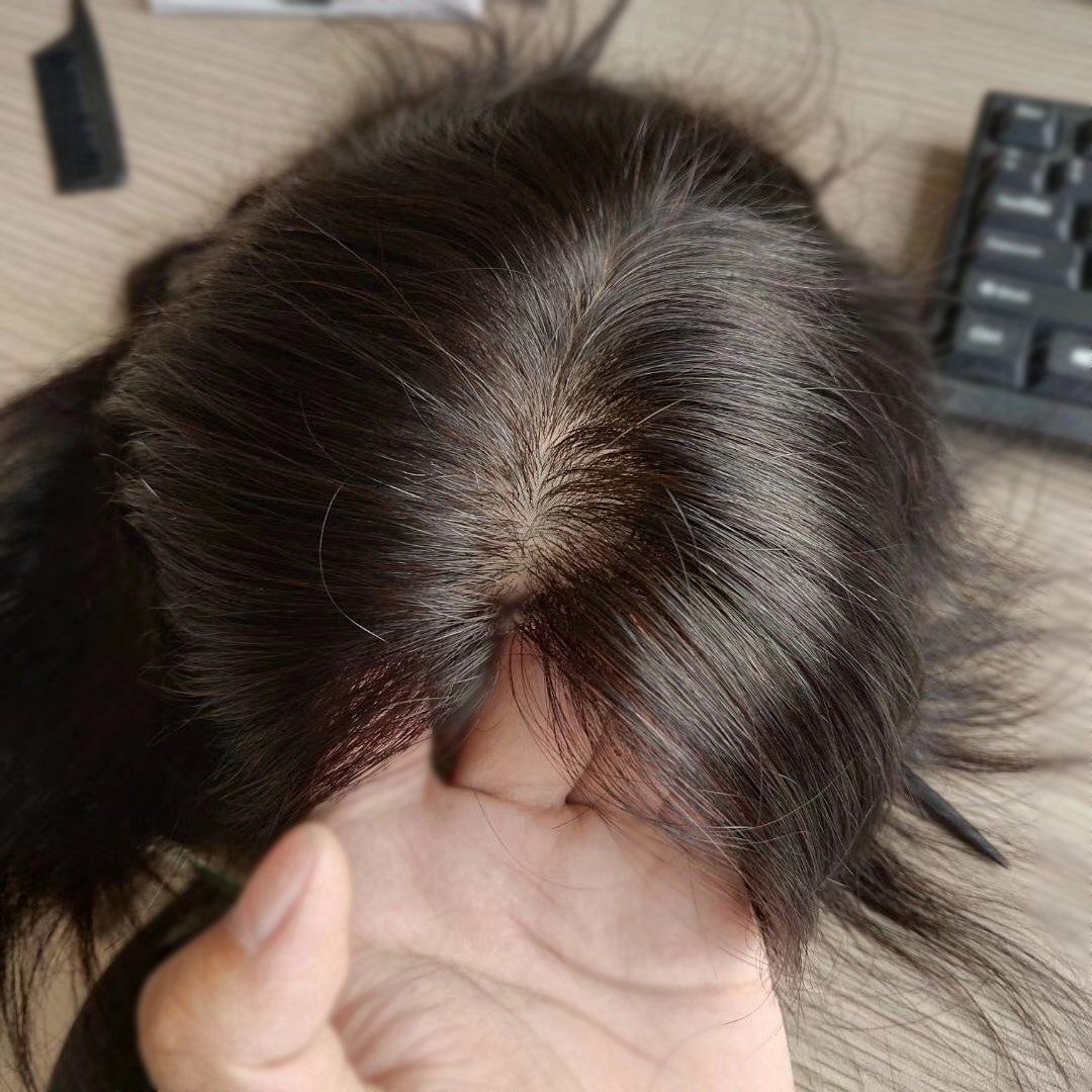 Full Silk Injected Base Human Hair Topper Hair Pieces For Thinning Hair And Baldness Patches Hairpieces For Women Hair Toppers Hairstyles For Thin Hair