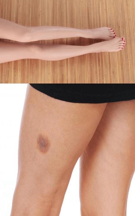 Pin by Hinata Jalous on Skin Health   Dark spots on legs, Spots on