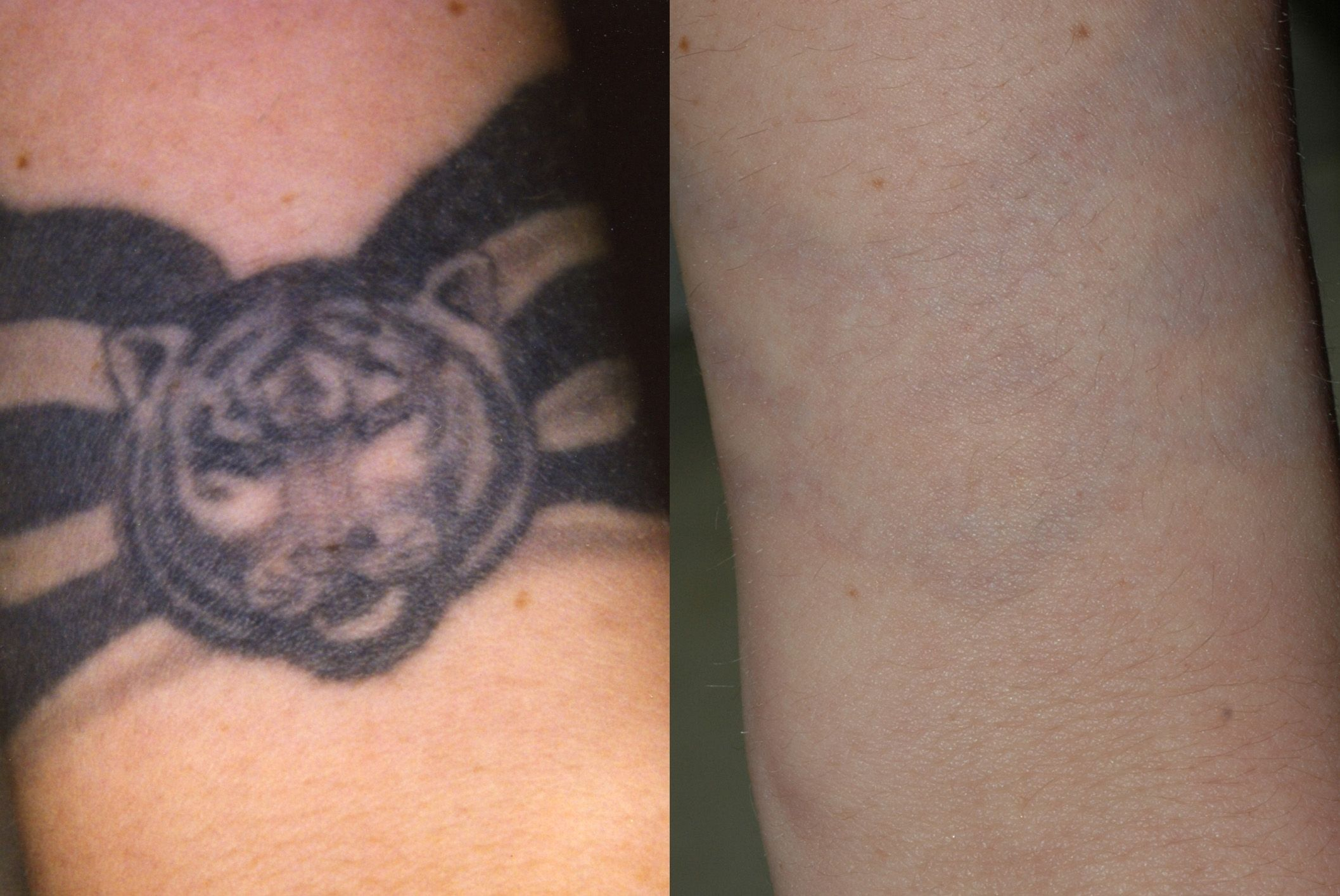 Tattoo Temoval Before And After Pictures Tattoo removal