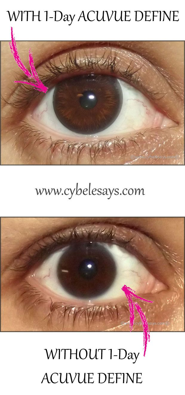 See my eye with and without day acuvue define enhancement amazing also best contact lenses images colored contacts coloured rh pinterest
