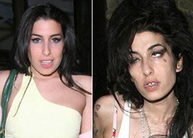 Celebrities before and after drugs!