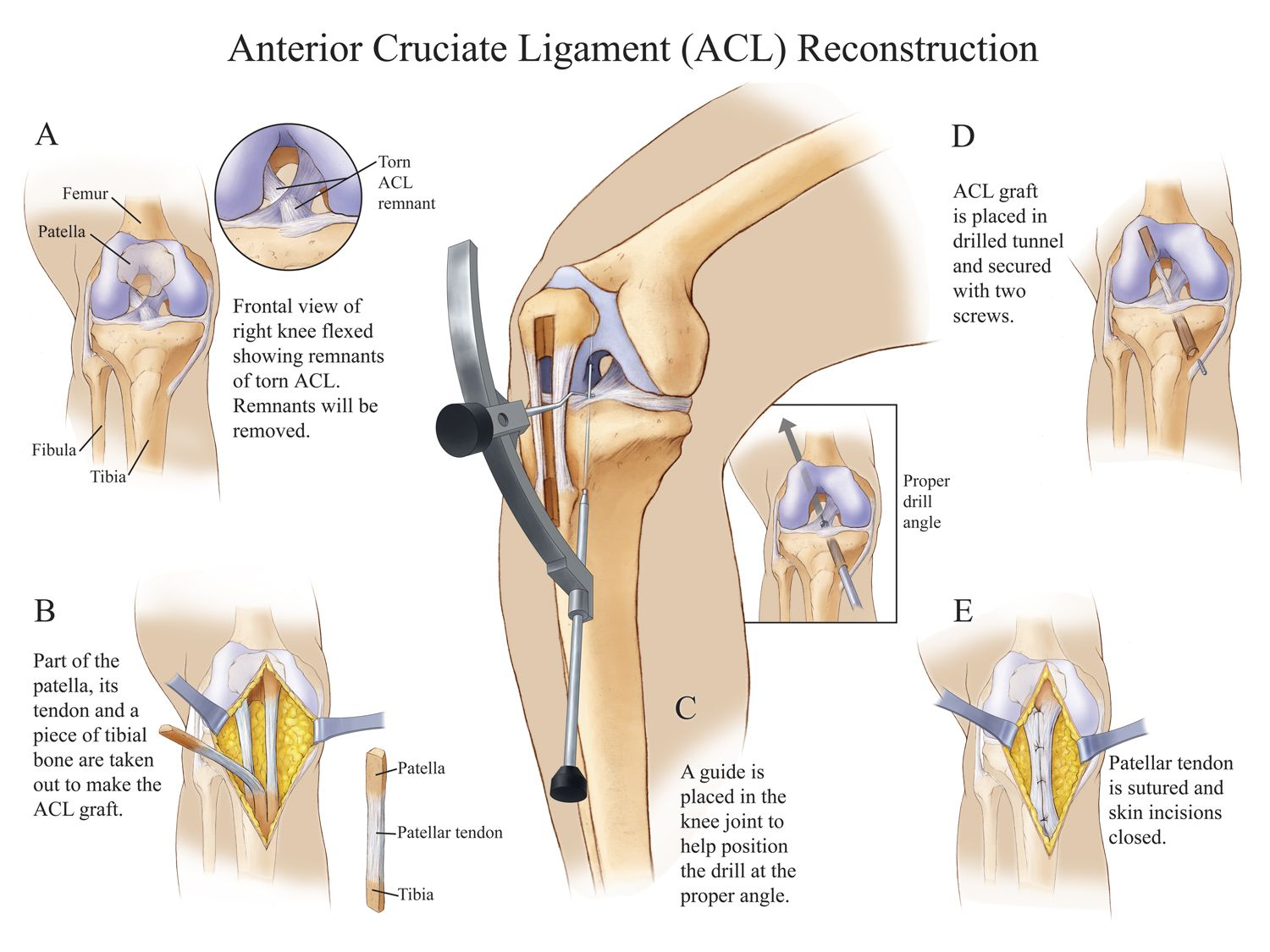 Knee pain diagnosis chart - Anterior Cruciate Ligament Acl Reconstruction Compel Visuals