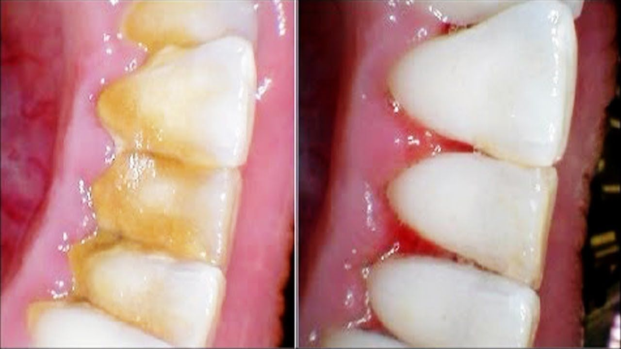 How To Remove Dental Plaque from Teeth at Home Healthy