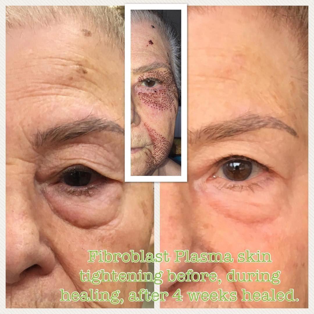 Winemakingmachineforhome Skintighteningcellulitetreatment Skin Tightening Treatments Skin Tightening Perfect Eyebrows