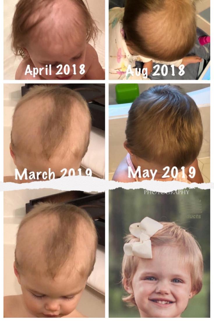 Pin On Alopecia Alopecia Treatment