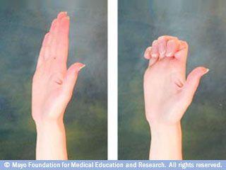 les 25 meilleures id es de la cat gorie arthrite des doigts sur pinterest exercices de doigts. Black Bedroom Furniture Sets. Home Design Ideas