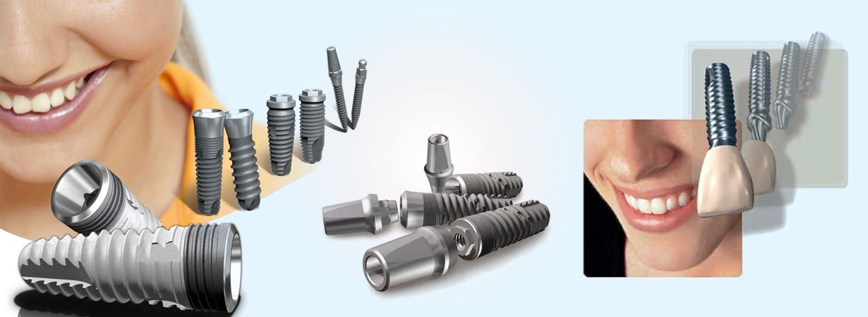 Cost Of Dental Implants In Hyderabad Appointment With Implantologist Dental Implants Dental Implants Cost Dental