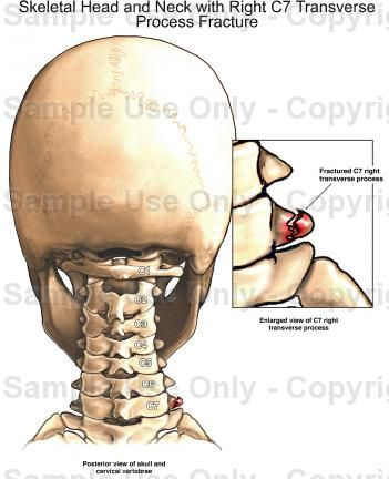 transverse processes fracture - Google Search   Medical ...