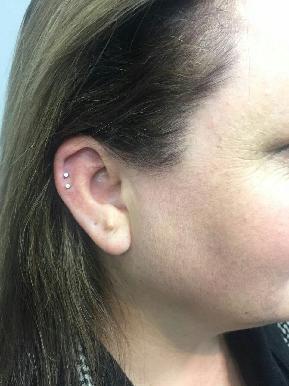 Nose piercing hole scar  Pin by Caitlin Cox on Peircings  Pinterest  Peircings