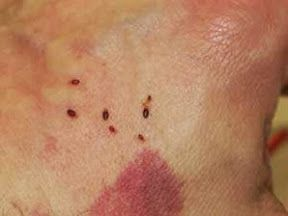 Pin By Flea Bites Pictures On Flea Bites Pinterest Bed Bugs