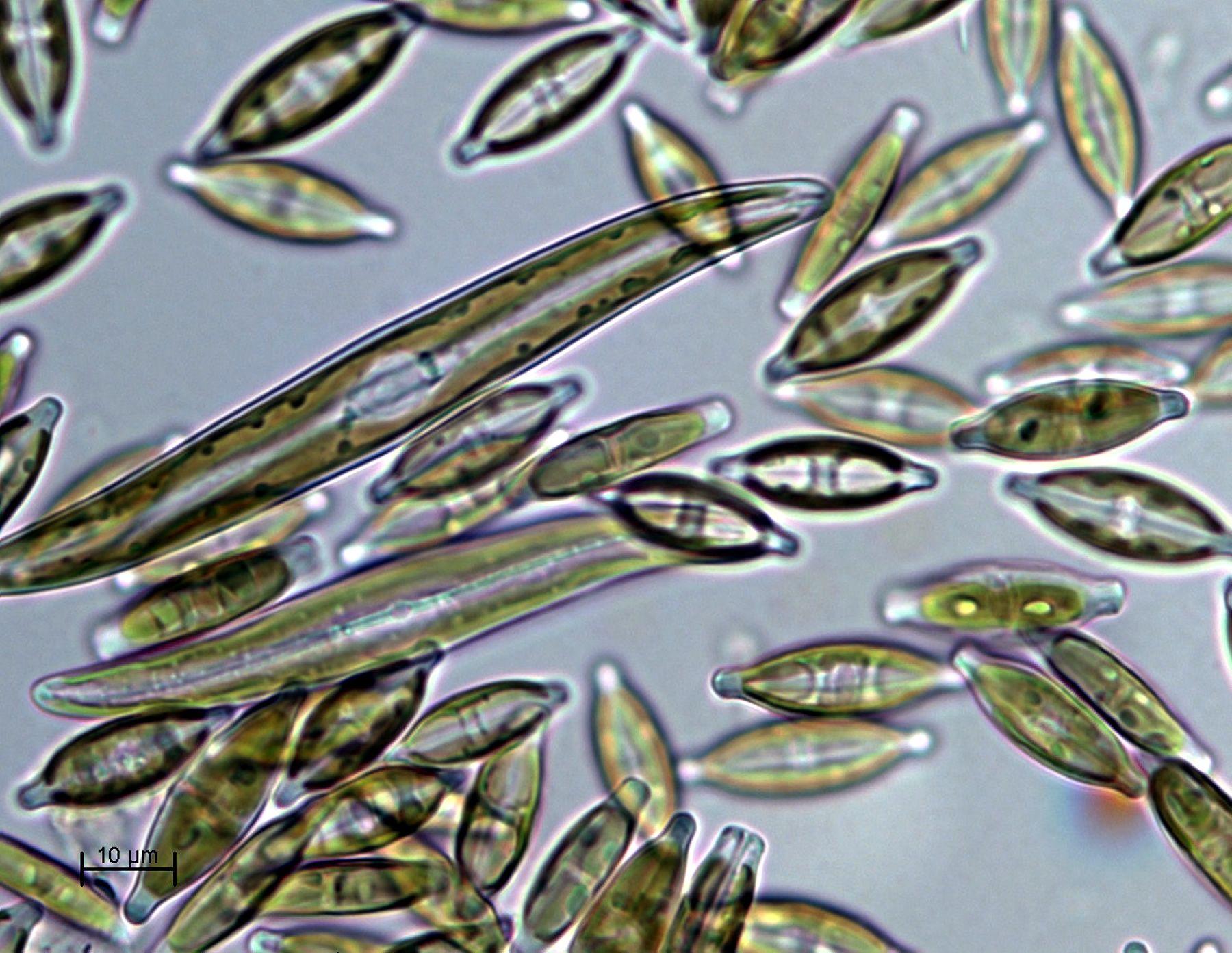 Pin By Nathaniel Hannemann On Chlorophyta Charophyta Etc