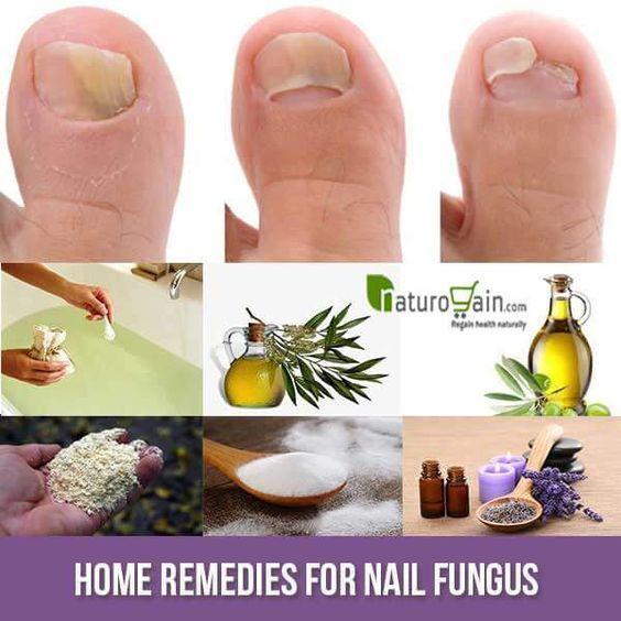6 Superb Home Remedies For Nail Fungus- Get Rid Of Toenail ...