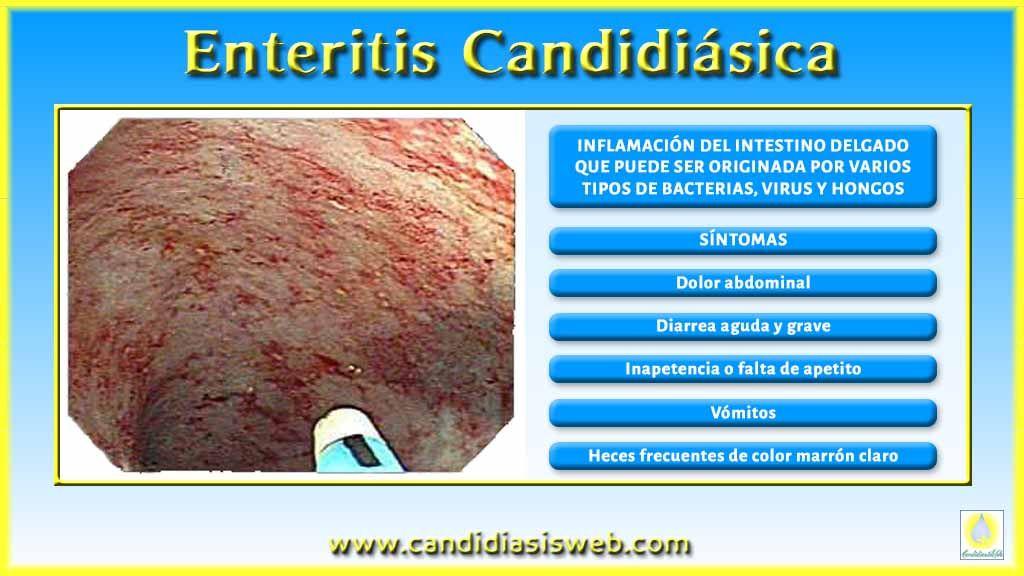 candidiasis intestinal heces
