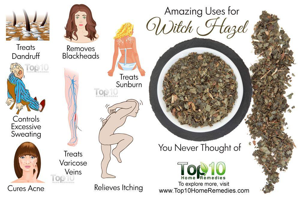 witch hazel skin benefits
