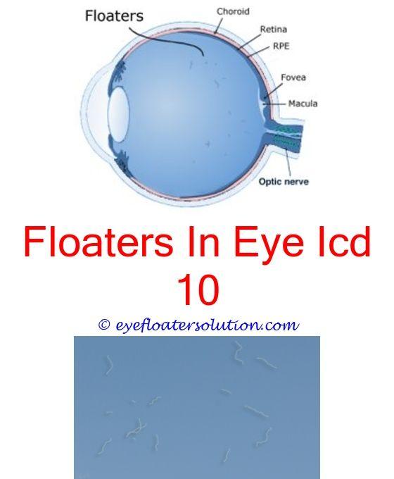 Are Eye Floaters Dangerous Yahoo – Anexa Beauty