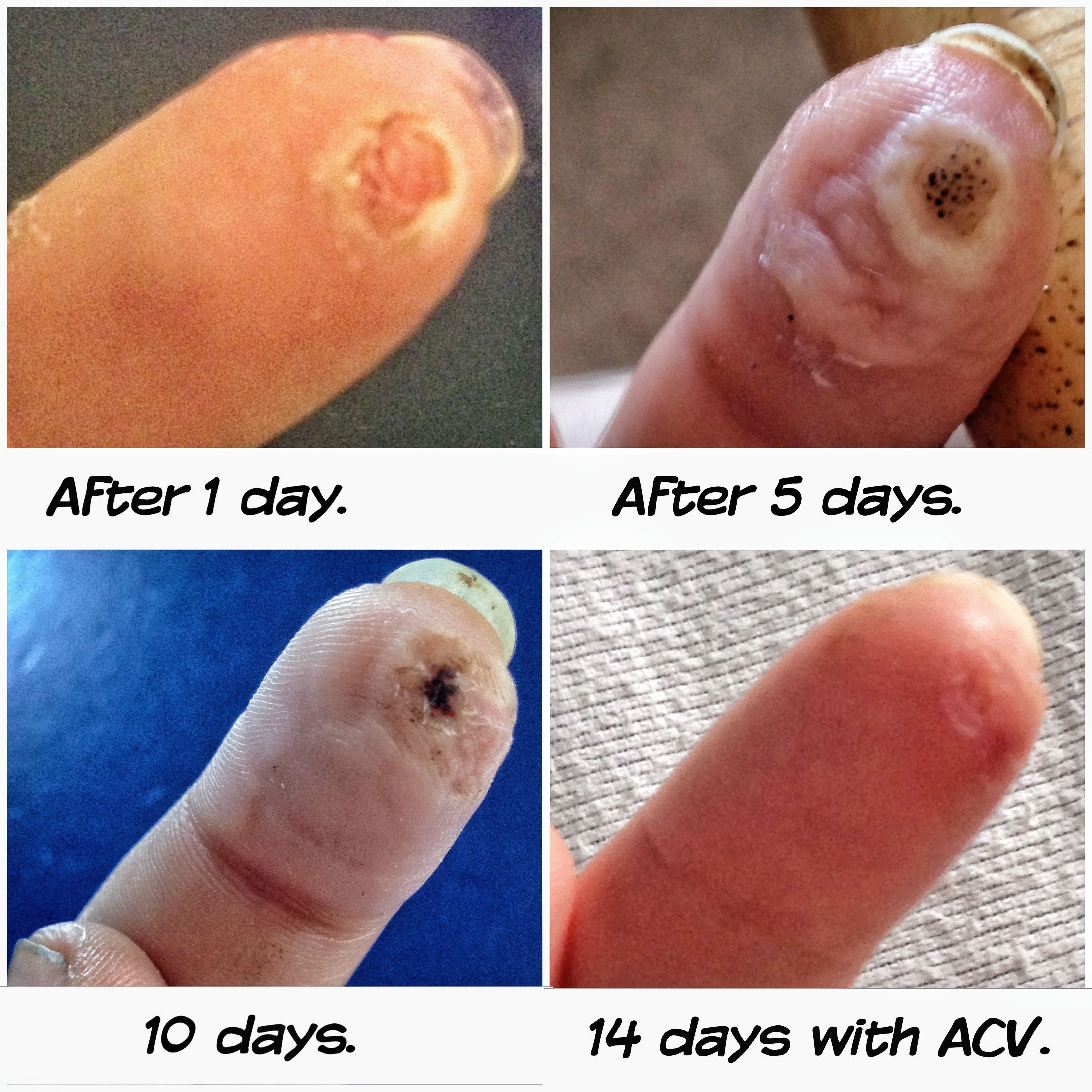 Plantar wart and ACV!! It honestly works! I have Been looking in ...