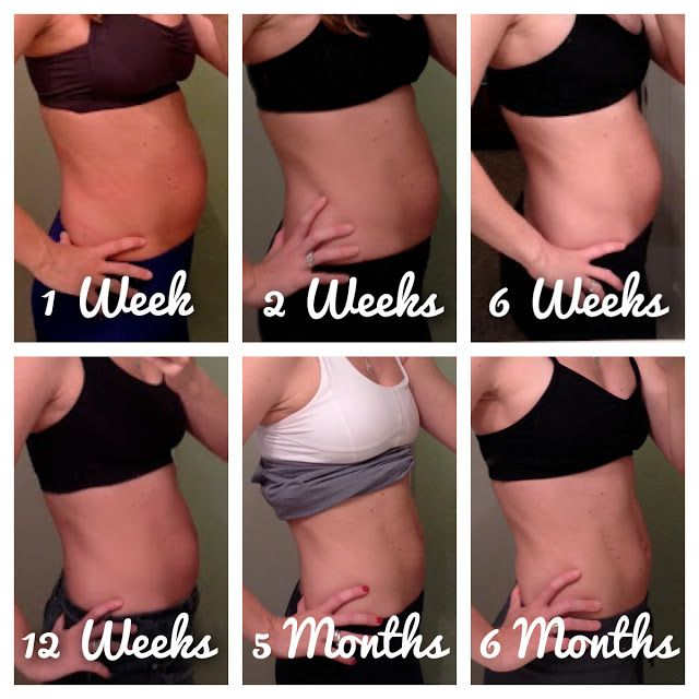 Postpartum Belly Before And After | www.pixshark.com ...