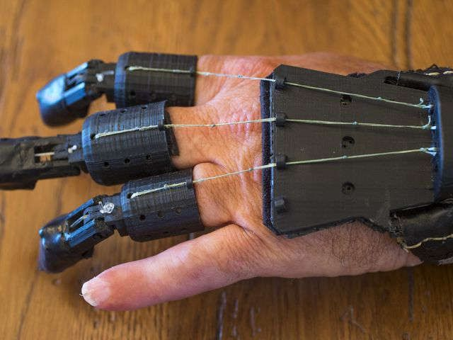 Man Creates Diy Prosthetic Device After Amputation Prosthetic Device Medical Technology Prosthetics
