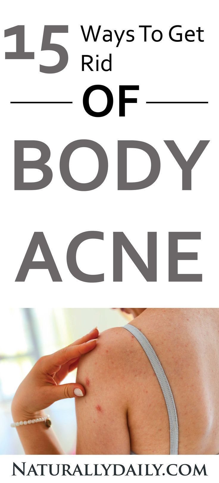 If you want to get rid of acne then you should not