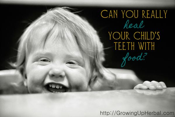 Können Sie wirklich die Zähne Ihres Kindes mit Nahrung heilen?   – Natural Skin, Hair, and Tooth Care Recipes, Remedies & Products