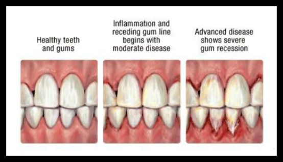 Diagram Showing Healthy Teeth And Gums To Advanced